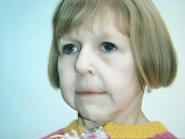progeri