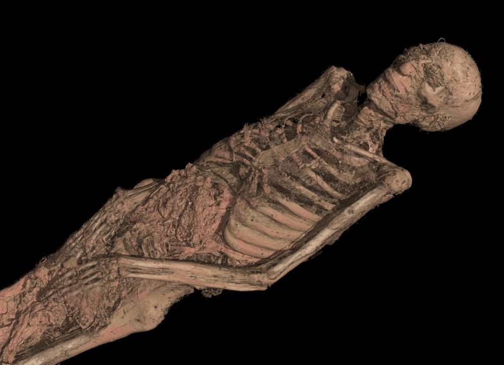The CT scan of the mummy of an adult male (name unknown), showing his mummified remains.