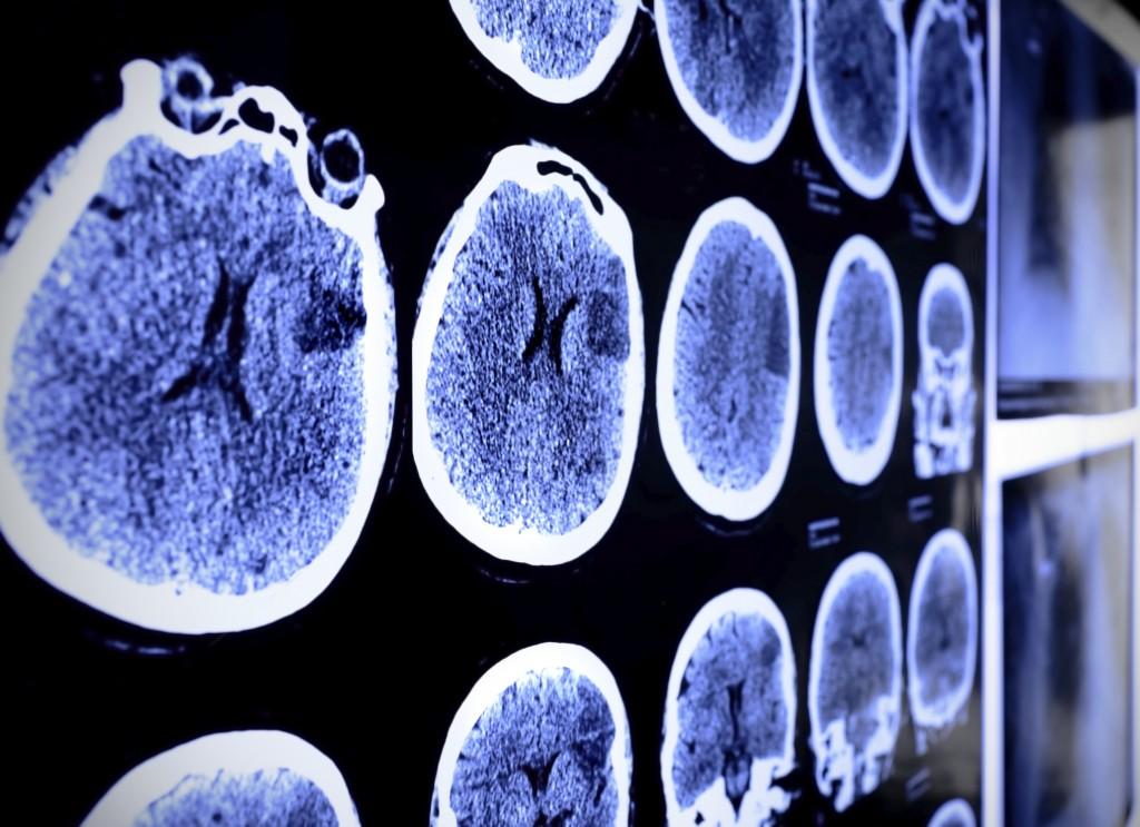 Tumore: come riconoscere i primi campanelli d – allarme