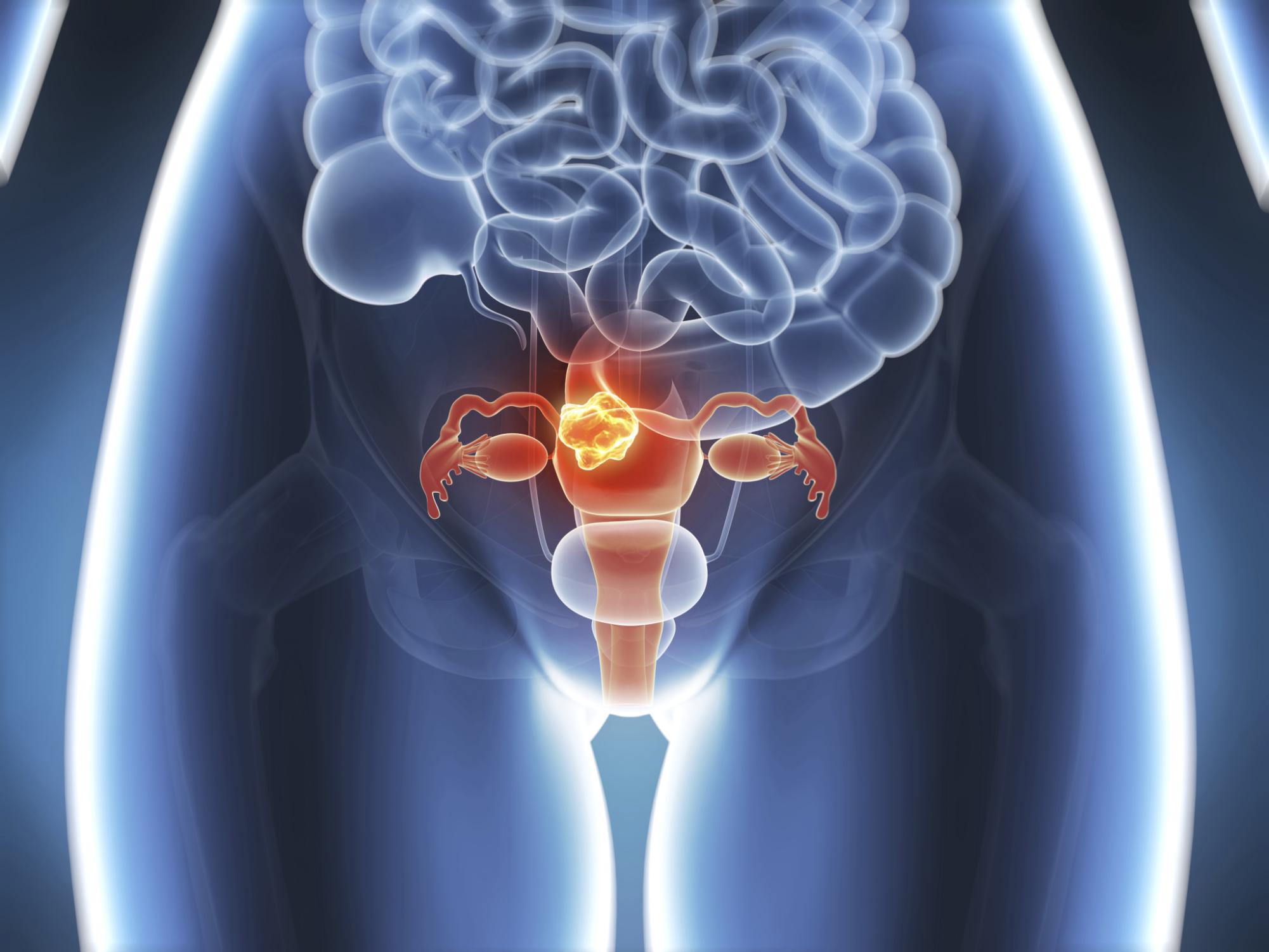 Prostata Kandal davolash mumkin - Massaggiatore per la prostata a San Pietroburgo