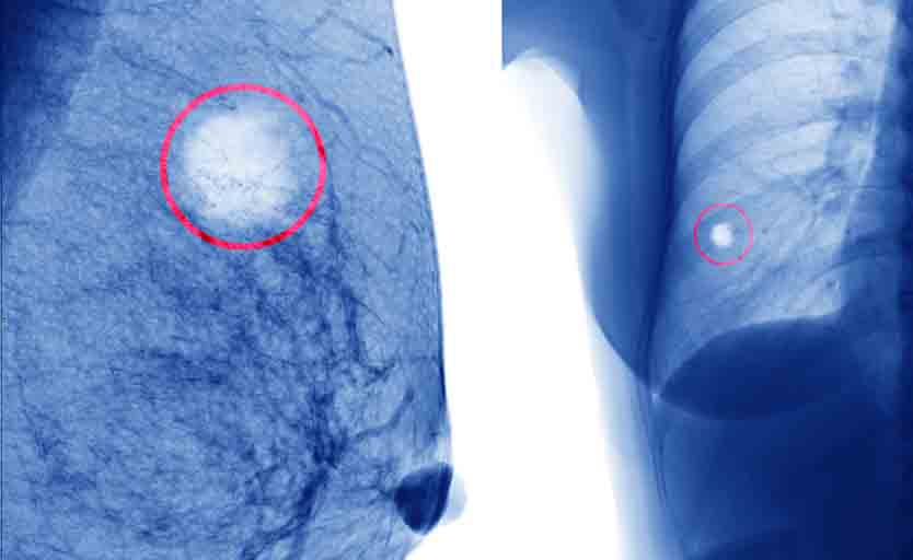 Cancro al seno: la diagnosi del tumore