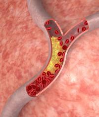 Colesterolo | Pazienti.it
