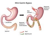 Bypass_gastrico | Pazienti.it