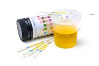 Esame citologico  | Pazienti.it