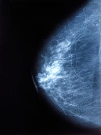 Calcificazioni mammarie | Pazienti.it