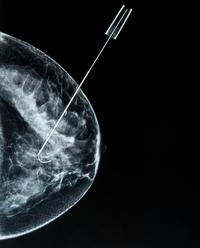 Biopsia al seno | Pazienti.it