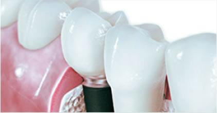 implanty-dentystyczne