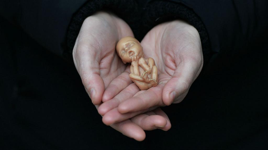 الإجهاض للبيع... مجانًا!