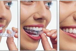 beldent stomatoloske ordinacije beograd centar4