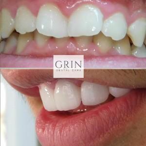 grin dental care dentist belgrade centar