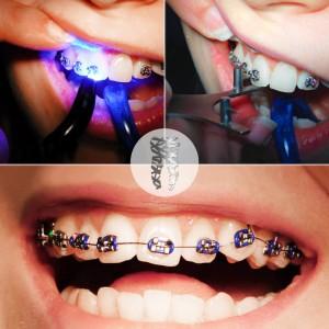 grin dental care dentist belgrade centar4