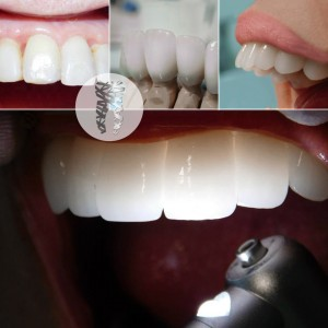 grin dental care stomatoloske ordinacije beograd centar2