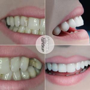 grin dental care stomatoloske ordinacije beograd centar3