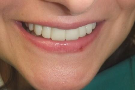dentist dr branislava smiljkovic dentist belgrade centar4
