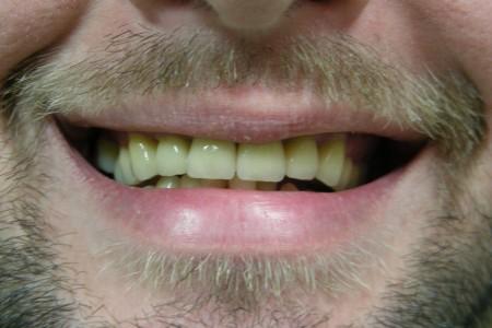 dr radomir ljubisavljevic dentist belgrade centar4