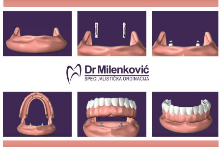 dr milenkovic dentist belgrade zvezdara