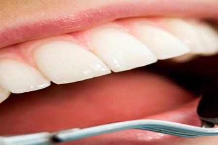 lady dent stomatoloske ordinacije beograd centar3