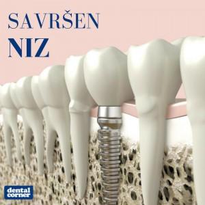 dental corner esthetics stomatoloske ordinacije beograd vracar4