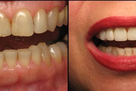 dental clinic stomatoloske ordinacije beograd vozdovac3