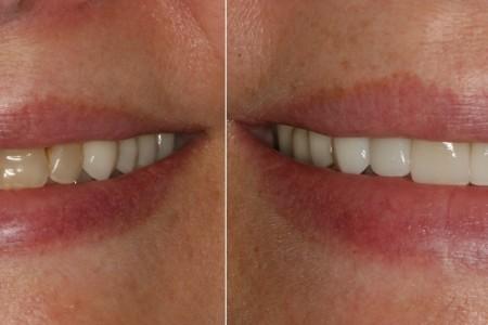 pilipovic dentist belgrade palilula