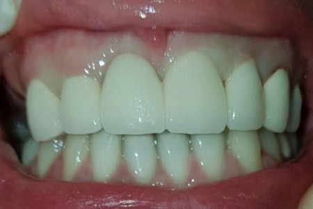 dr garic dentist belgrade zvezdara2