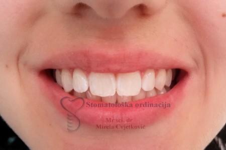 dr mirela cvetkovic stomatoloske ordinacije beograd novi beograd6