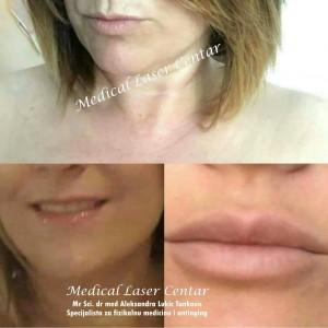 medical laser anti aging centar estetska medicina beograd cukarica1