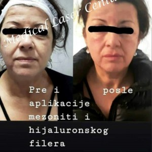 medical laser anti aging centar privatne poliklinike cukarica2