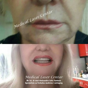medical laser anti aging centar privatne poliklinike cukarica4