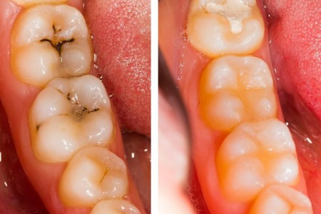 stomatoloska ordinacija panakeia stomatoloske ordinacije beograd cukarica3
