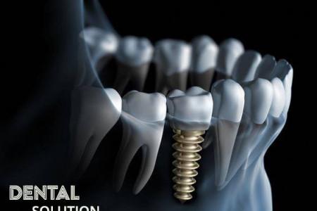 dental solution stomatoloske ordinacije beograd zvezdara4
