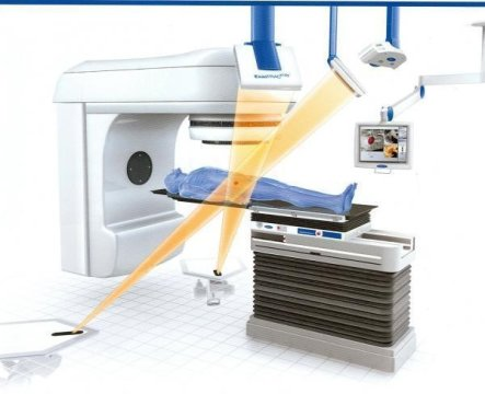 Radiotherapy for prostate cancer process