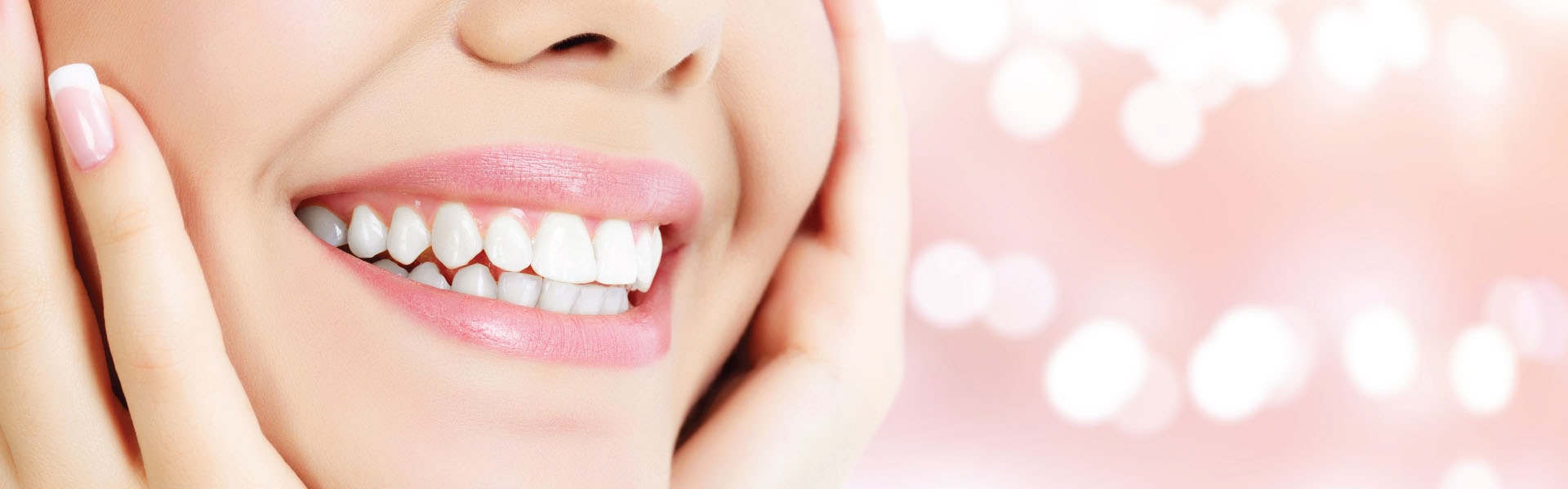 Cheapest veneers abroad — TOP 4 places to get a budget brilliant