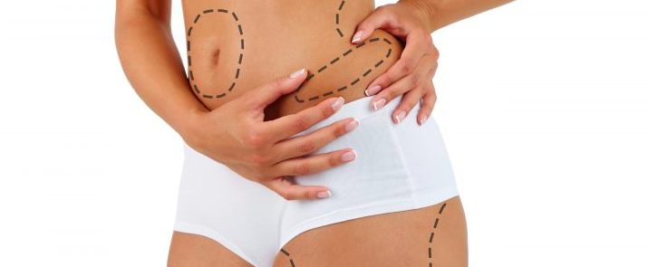 ≡ Top 5 cheapest places to get liposuction