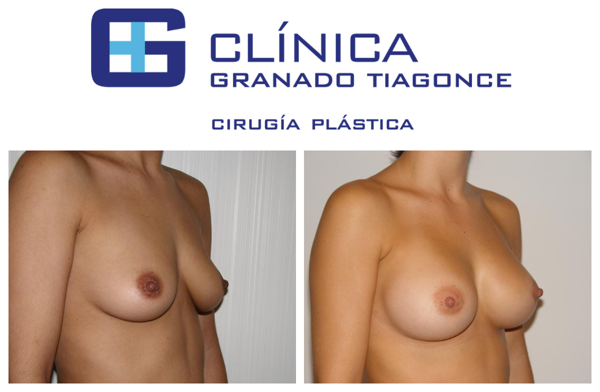 Breast Augmentation In Turkey The Best 23 Clinics Prices 2020