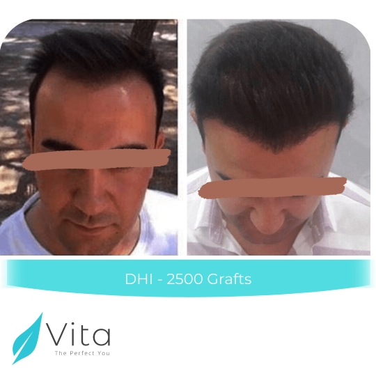 DHI hair transplant result with 2,500 grafts in Vita Estetic Clinic
