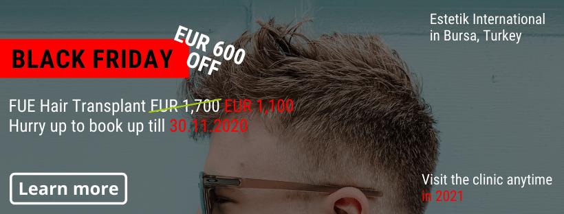 FUE Hair transplant Estetik Bursa Black Friday offer