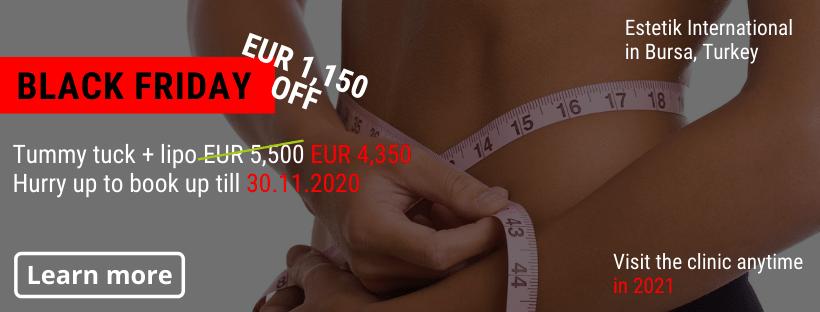 Tummy tuck Estetik Bursa Black Friday offer