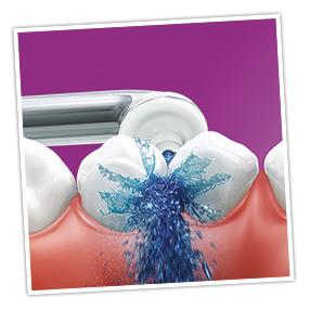 Reinigen der Zahnzwischenräume mit der Philips Sonicare AirFloss Ultra