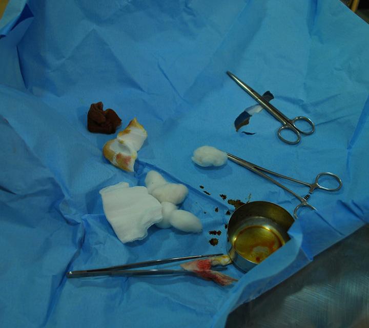 نفايات,طبية,بيولوجي,عمليات