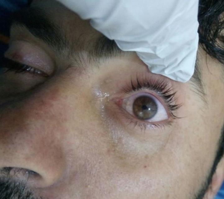 سوريا, مصابين, غاز السارين, الأسلحة الكيماوية