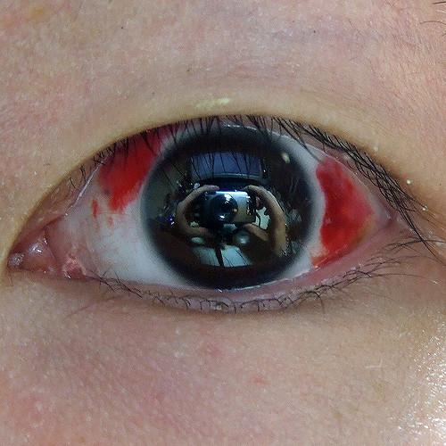 عين, ليزك, تصحيح الإبصار, طول النظر, قصر النظر