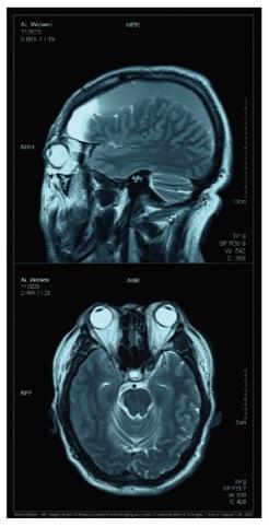 Ai Weiwei's skull