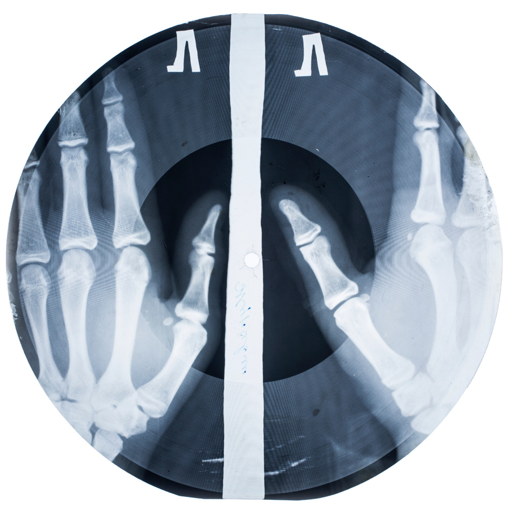Soviet Music 'On the Bone' Vinyl Record, Copy on Medical X-Ray Fluorography, Sheet, 1950s–1960s