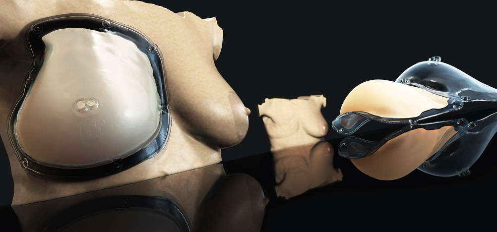 3D printing for breast prosthesis