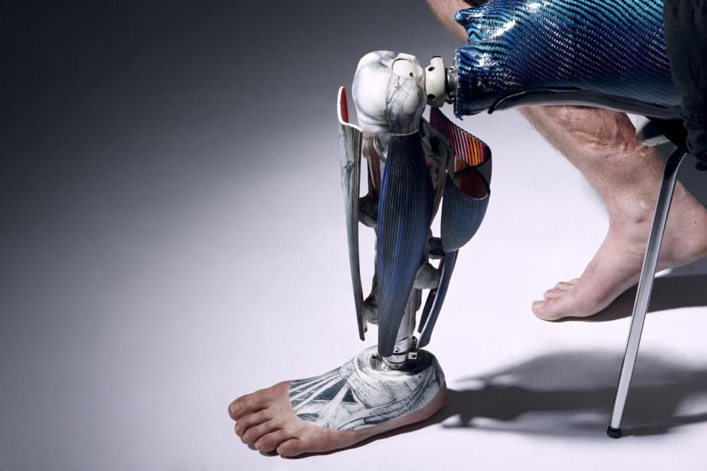 ALP Anatomical leg. © Omkaar Kotedia.