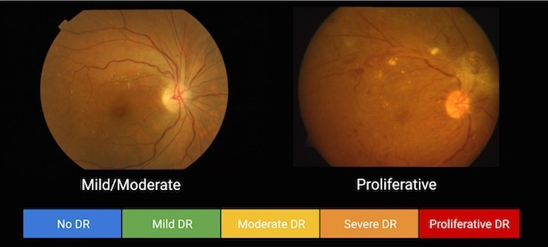 retinopathy research