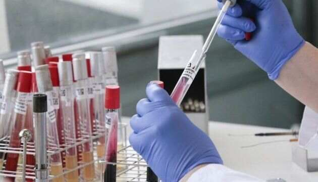 За минулу добу на Черкащині зафіксували ще одну смерть від коронавірусу