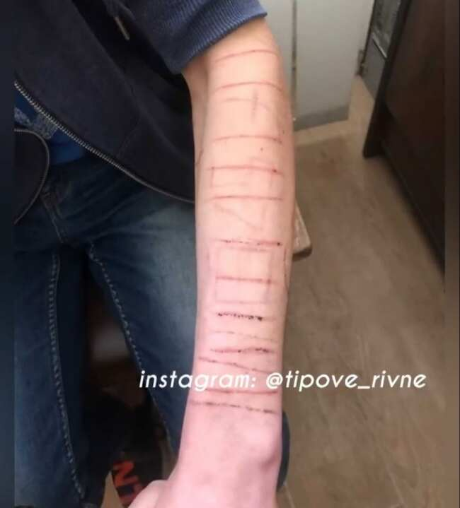 16-річний рівнянин порізав собі руки за невиконання завдань у смертельній грі (ВІДЕО)