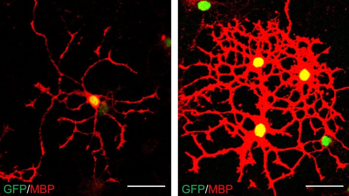 Oligodendrocyten